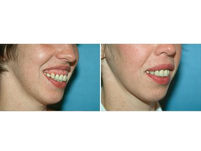 Korekcija usana - pre-posle | Clinic Olymp