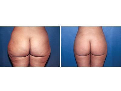 Liposukcija pre-posle | Clinic Olymp