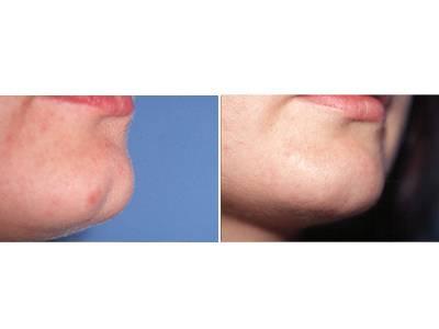 Korekcija brade pre-posle | Clinic Olymp