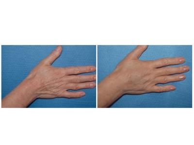 Pomladivanje ruku pre-posle | Clinic Olymp