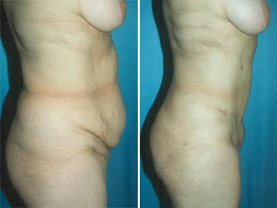 Zatezanje stomaka - plastična operacija stomaka - pre-posle | Clinic Olymp