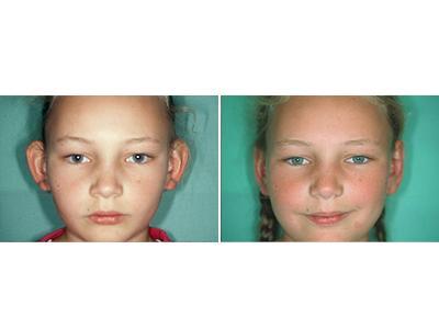 Operacija ušiju - pre-posle | Clinic Olymp