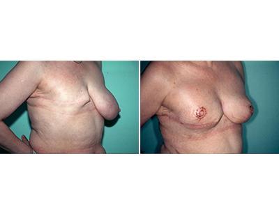 Rekonstrukcija dojke pre-posle | Clinic Olymp