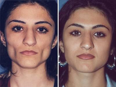 Harmonizacija lica - liposkulptura pre-posle | Clinic Olymp