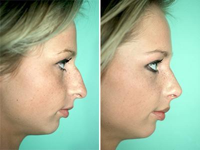 Operacija nosa - pre-posle | Clinic Olymp
