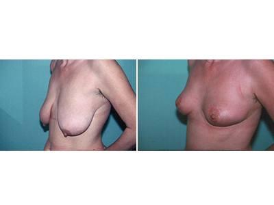 Smanjenje grudi pre-posle | Clinic Olymp