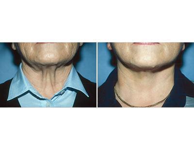 Zatezanje kože vrata - pre-posle | Clinic Olymp