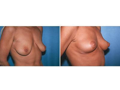 Podizanje grudi - pre-posle | Clinic Olymp