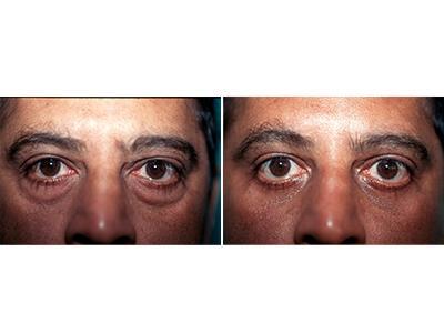 Operacija kapaka - pre-posle | Clinic Olymp