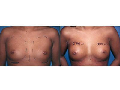Povećanje grudi - silikoni - pre-posle | Clinic Olymp