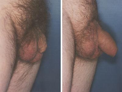 Povećanje penisa pre-posle | Clinic Olymp
