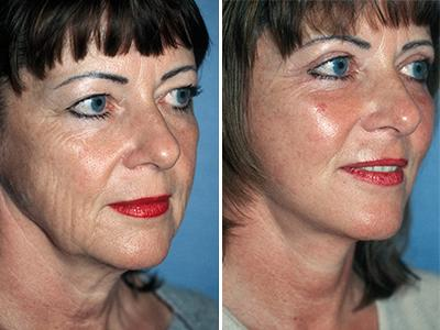 Facelifting pre posle | Clinic Olymp