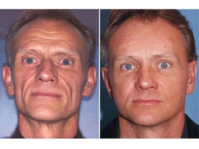 Facelifting pre posle (muško) | Clinic Olymp