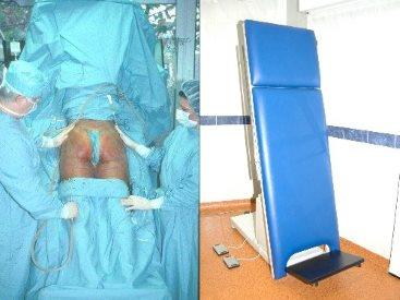 Specijalizirani stol za vertikalizaciju prilikom liposukcije | Clinic Olymp
