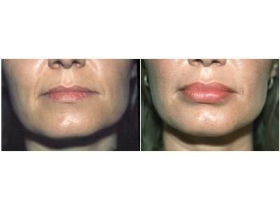 Tretman Povećanje usana pre-posle | Clinic Olymp