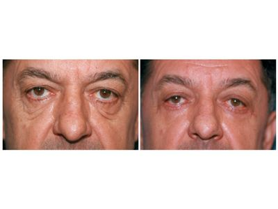 Uklanjanje podočnjaka hijaluronom pre-posle | Clinic Olymp