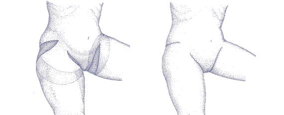 Zatezanje kože natkolenice | Clinic Olymp